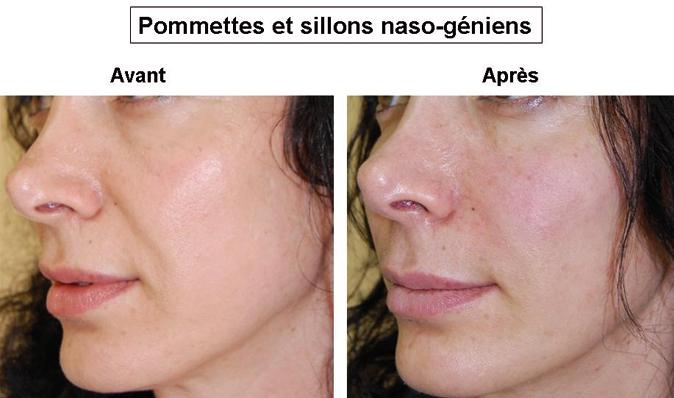 Le peeling redonne clat et tonicit au visage - crpcecom