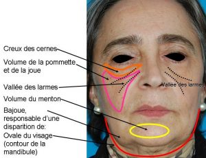 injections Acide hyaluronique visage