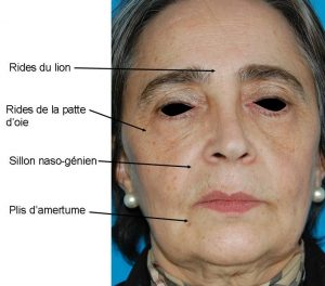 injections Acide hyaluronique Suisse
