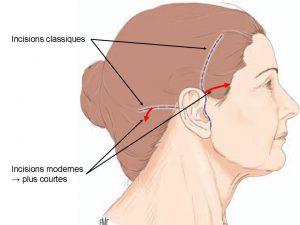 lifting cervico-facial Genève