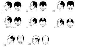 Bilan et diagnostic chute de cheveux