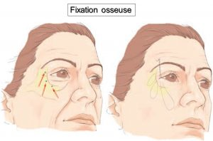fixation-orbitaire-du-lifting-centro-facial