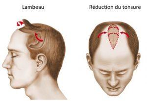 greffe de cheveux lambeau et tonsure