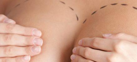 Mastopexie et lifting des seins