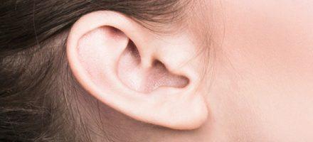 oreilles décollées