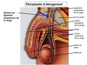 Phalloplastie Suisse