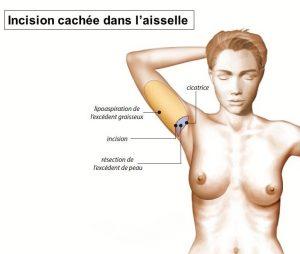 Liposuccion bras Suisse