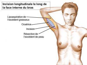 Liposuccion bras