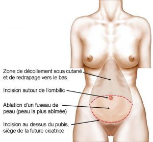 principe-de-la-plastie-abdominale-classique