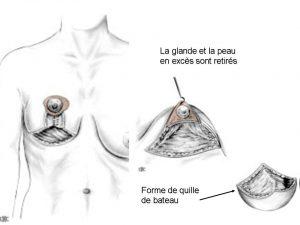 Réduction mammaire Suisse