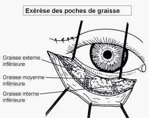 Chirurgie poches sous les yeux