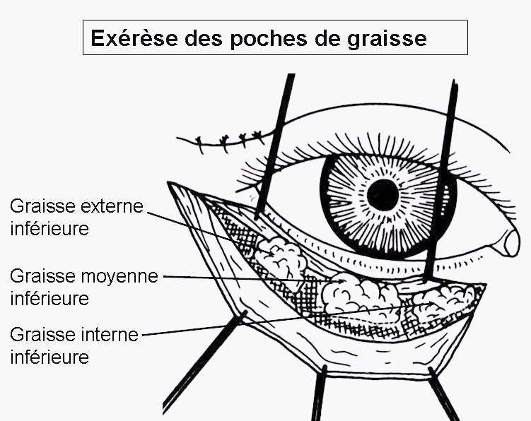 bl pharoplastie gen ve et lausanne chirurgie des paupi res en suisse dr bayol. Black Bedroom Furniture Sets. Home Design Ideas