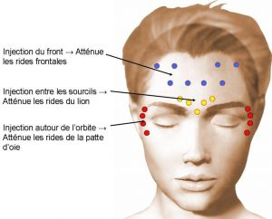 sites-dinjection-toxine-botulique