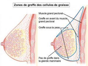 Lipostructure seins