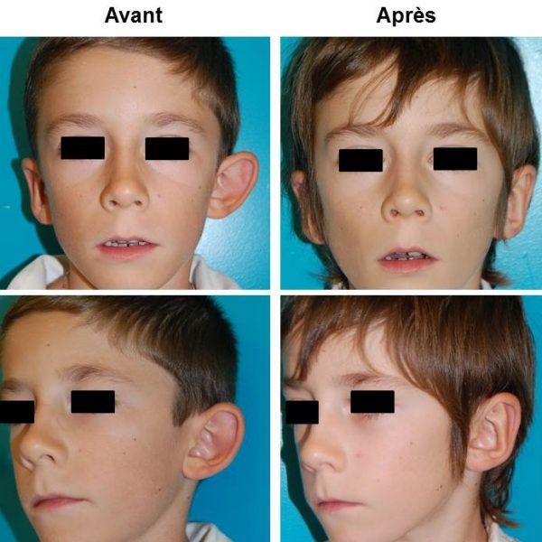 Otoplastie Chirurgie Des Oreilles Decollees Dr Bayol Suisse