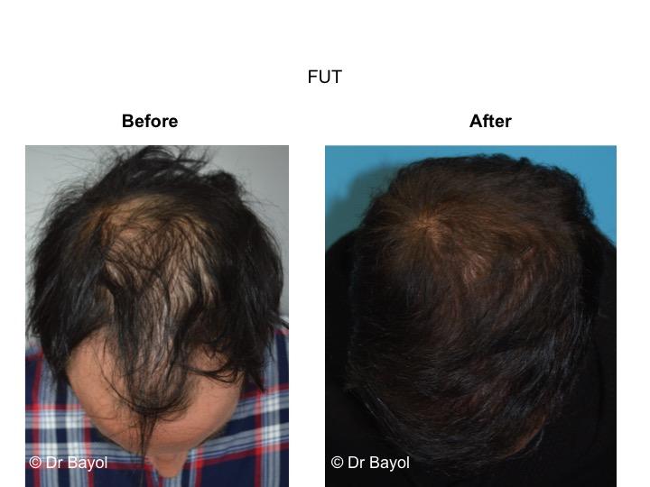 implants capillaires FUT Genève