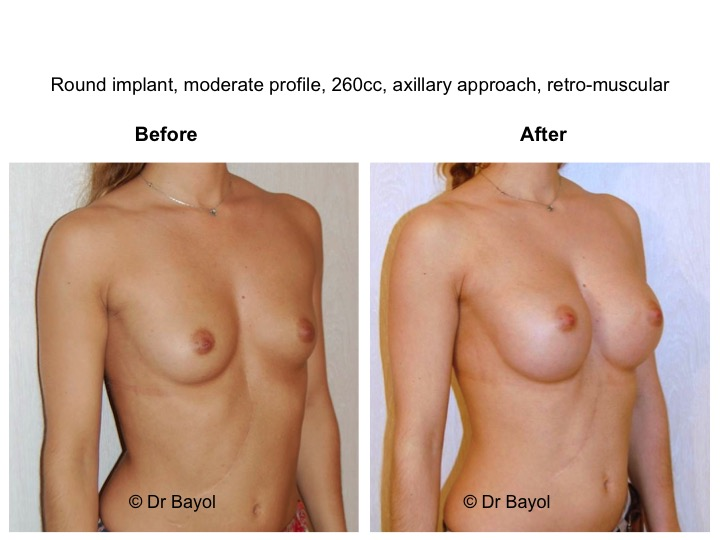 augmentation mammaire geneve
