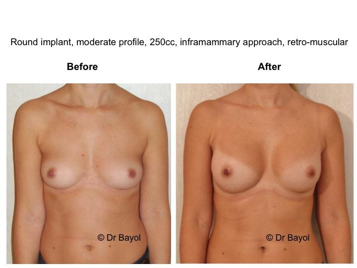 augmentation mammaire montreux