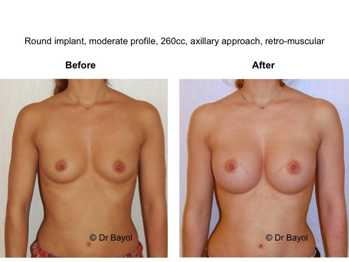 augmentation mammaire suisse