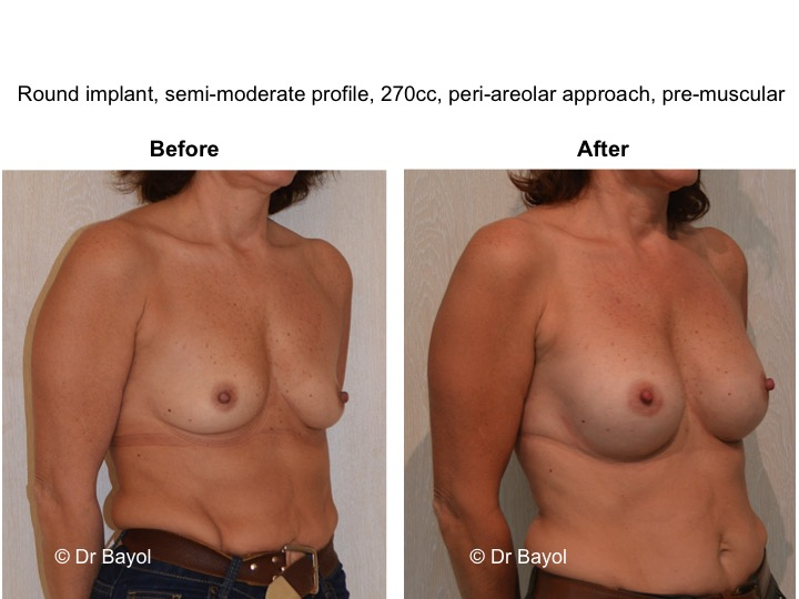 breast augmentation switzerland