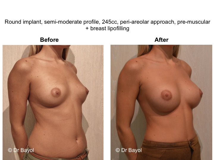 breast implant geneva