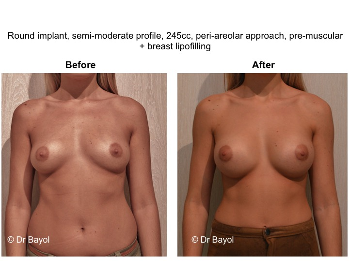 breast implant switzerland