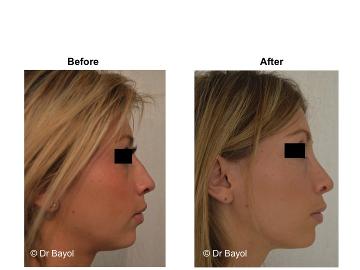 price rhinoplasty geneva