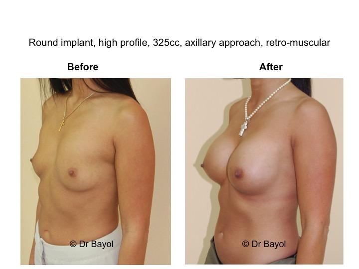 chirurgie esthetique poitrine suisse
