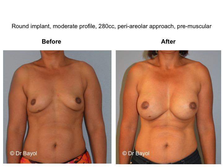 chirurgie esthetique seins geneve
