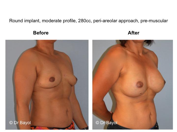 chirurgie esthetique seins lausanne