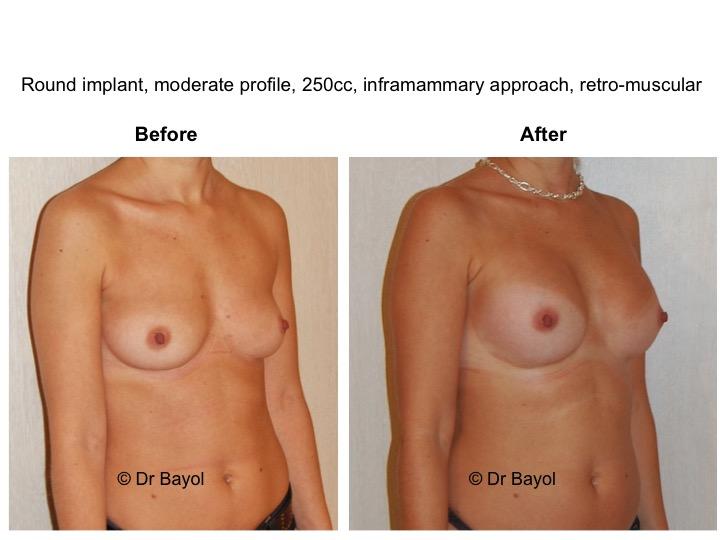 chirurgie esthetique seins montreux