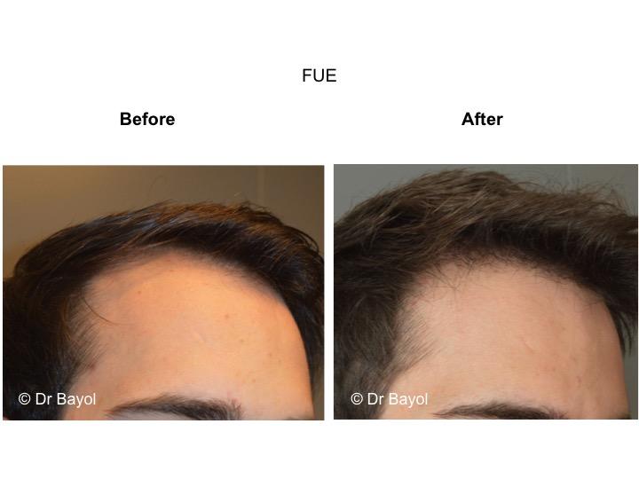 greffe cheveux FUE lausanne