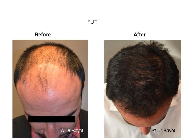 greffe cheveux cheveux FUT suisse