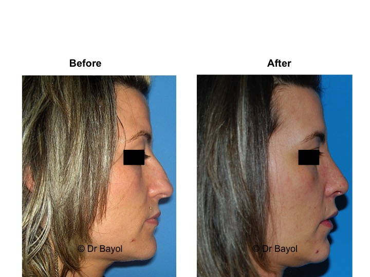 best plastic surgeon rhinoplasty geneva