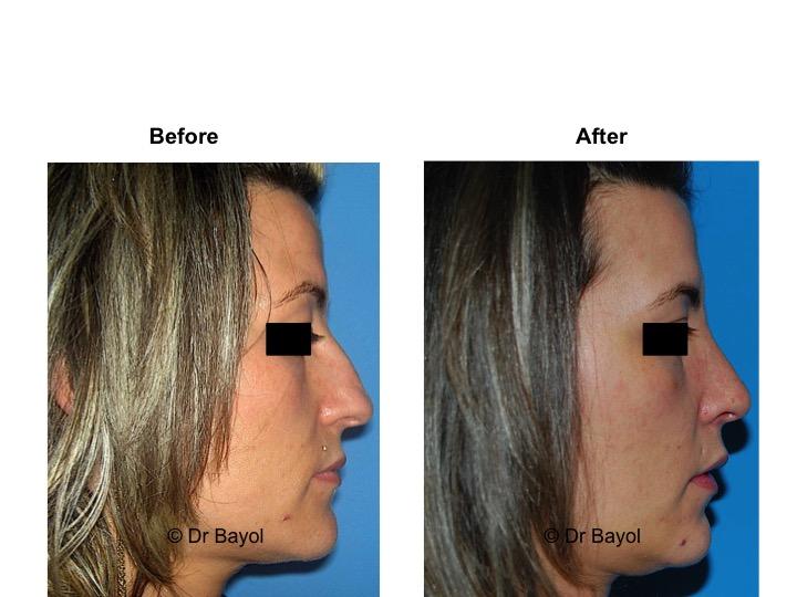 best plastic surgeon rhinoplasty geneva
