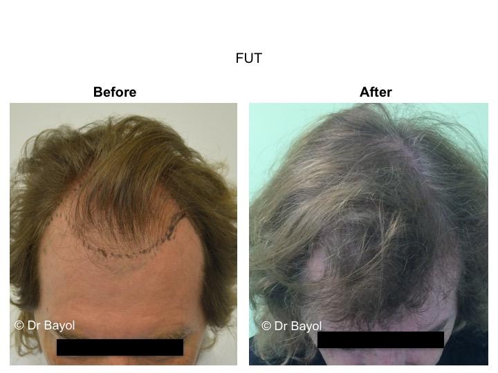 greffe cheveux geneve