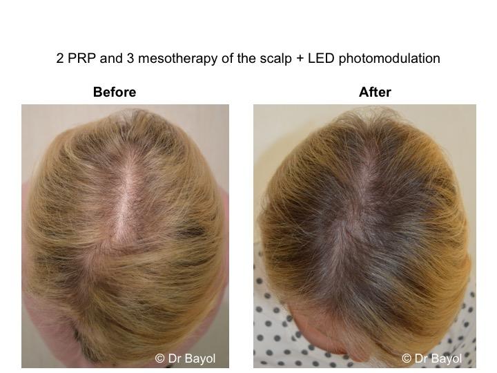 PRP cheveux suisse