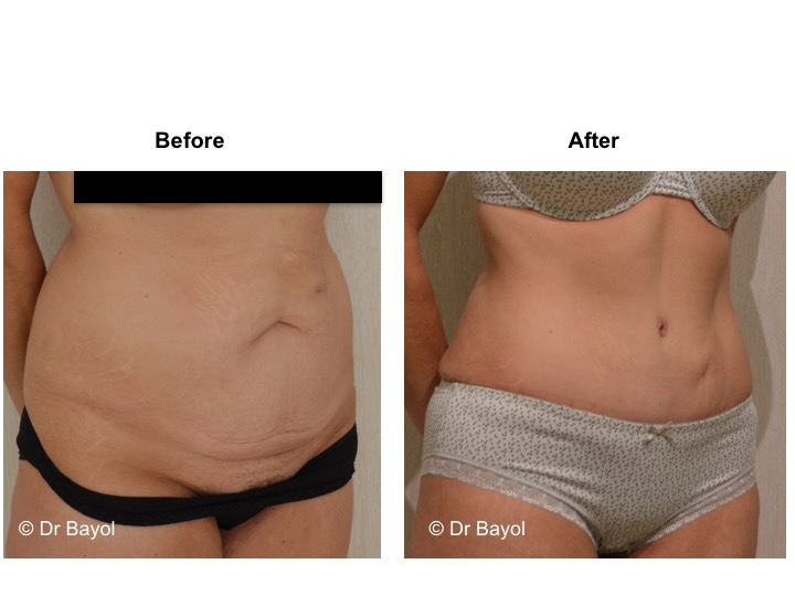 abdominoplasty switzerland