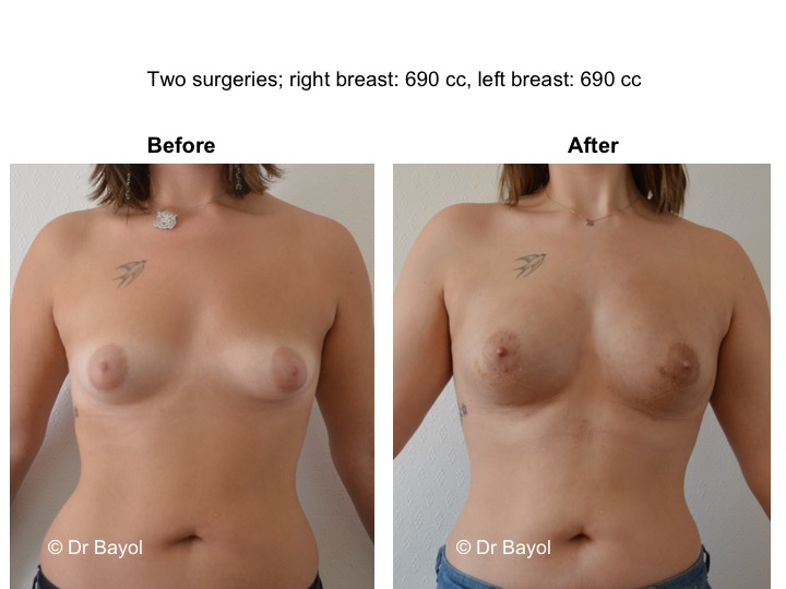 augmentation mammaire sans implants genève