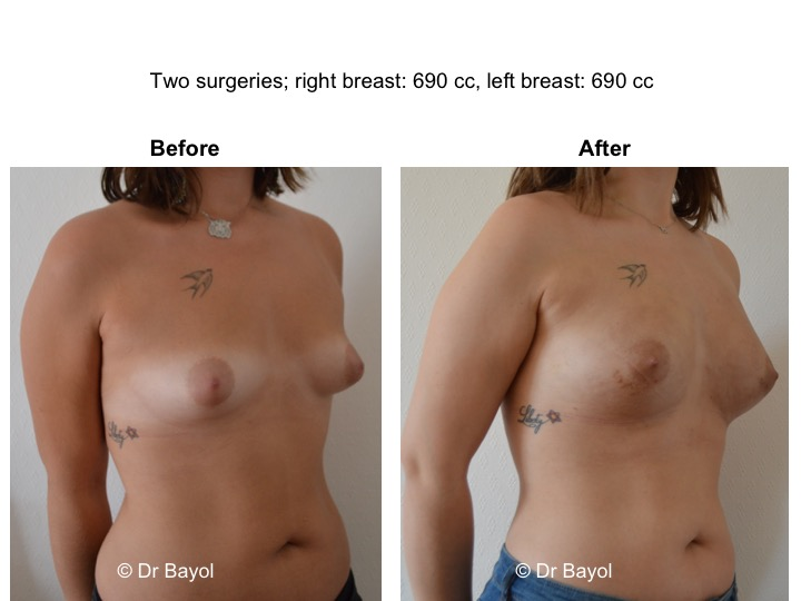 augmentation mammaire sans implants lausanne