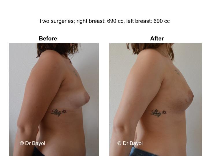 augmentation mammaire sans implants suisse