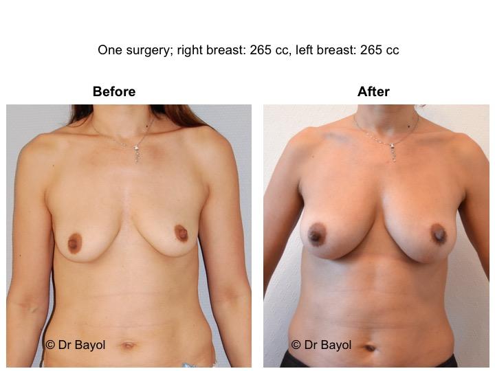 augmentation mammaire sans prothèses genève