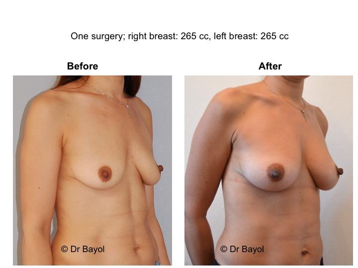 augmentation mammaire sans prothèses lausanne