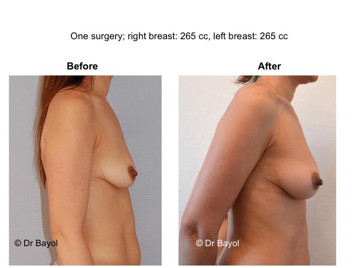 augmentation mammaires sans prothèses suisse