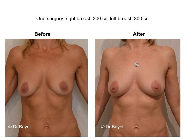 breast lipofilling geneva