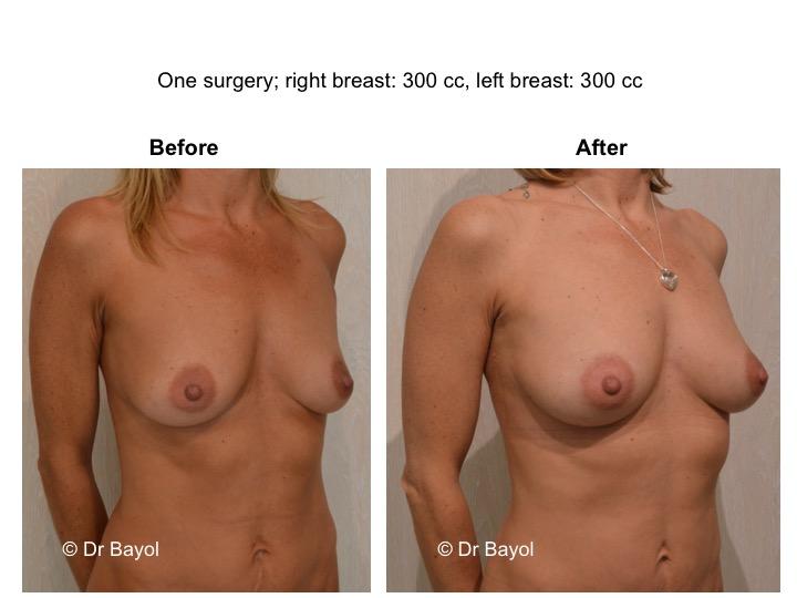 breast lipofilling lausanne