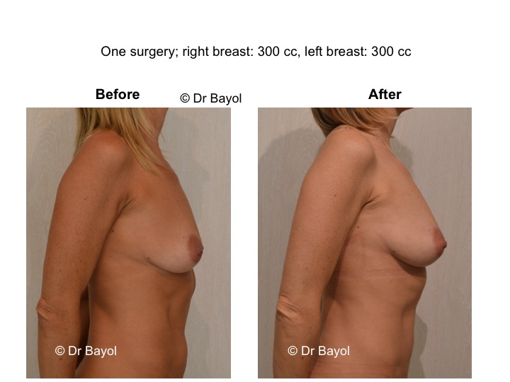 breast lipofilling switzerland