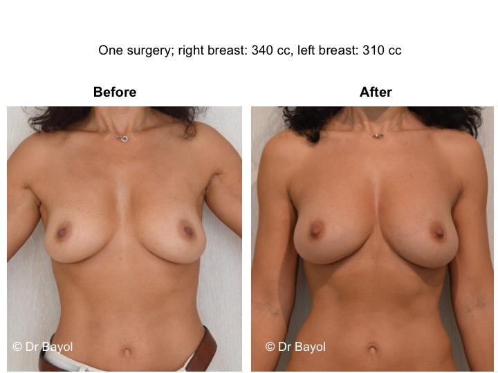 lipofilling mammaire genève