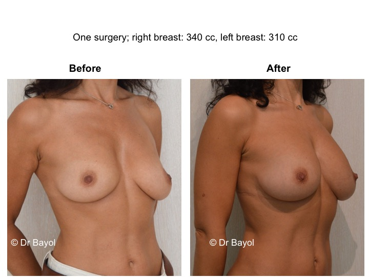 lipofilling mammaire lausanne