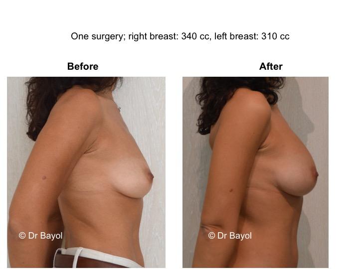 lipofilling mammaire suisse